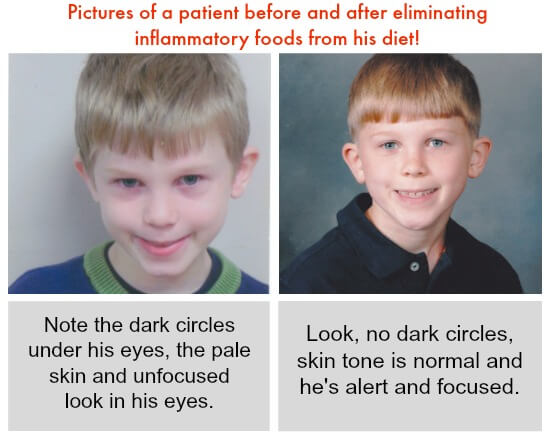 Pictures of a patient before and after eliminating inflammatory foods from his diet! Is There a Natural Alternative to PediaSure? At 100 Days of #RealFood