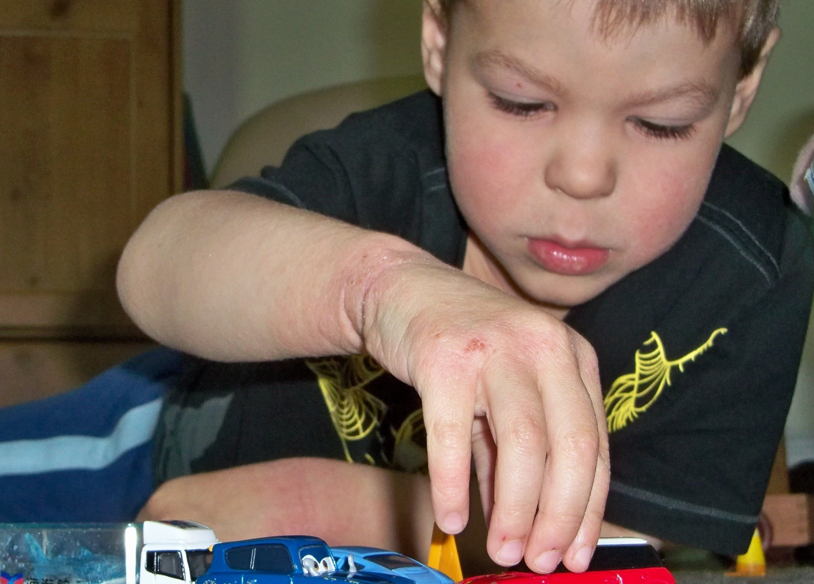 Jennifer Roberg's son with eczema